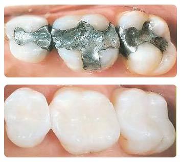 White Composite Fillings - before and after