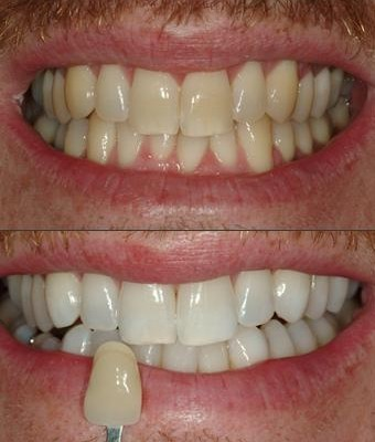 Tooth Whitening - before and after