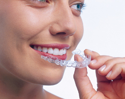 Lady puttin on Invisalign Clear Braces